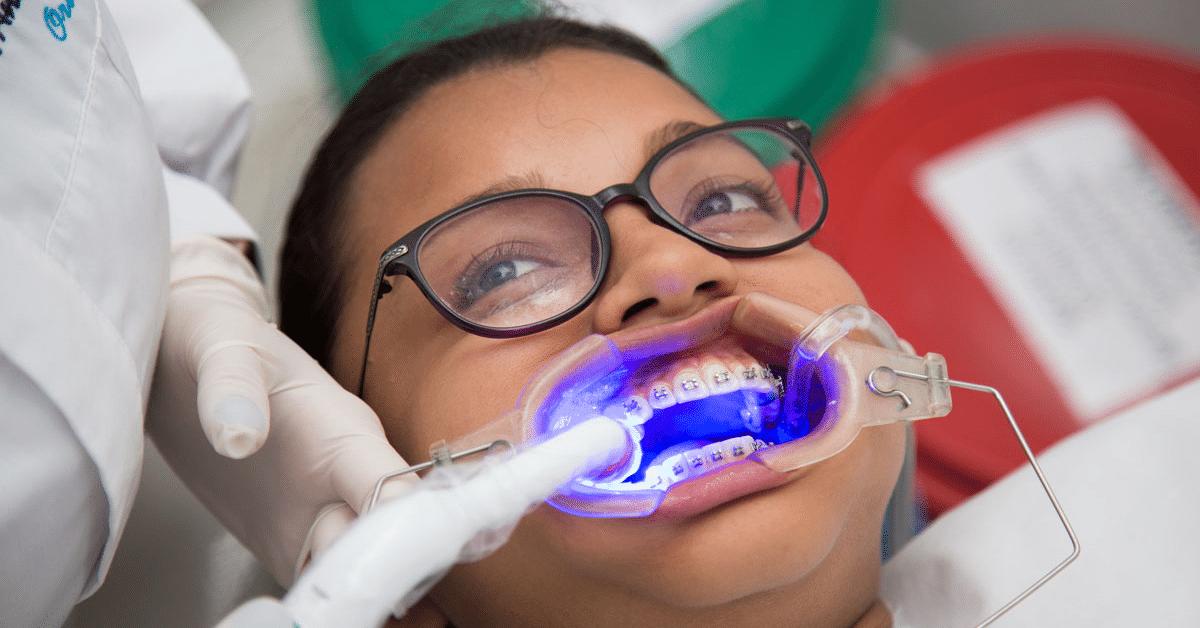Diseño de sonrisa ortodoncia